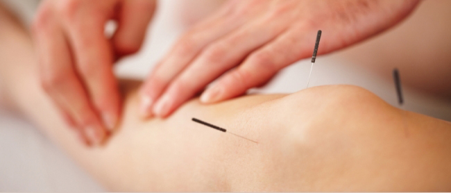 Acupuncture<a href=