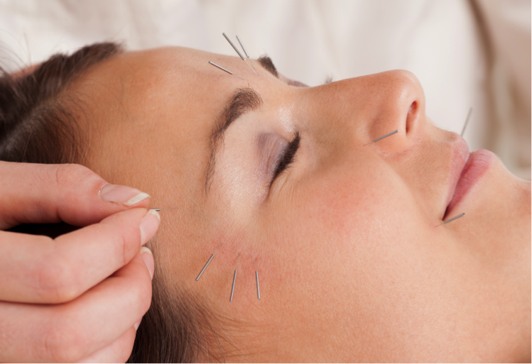 Facial Acupuncture 101: The guide for glow getters (Part 1 ...