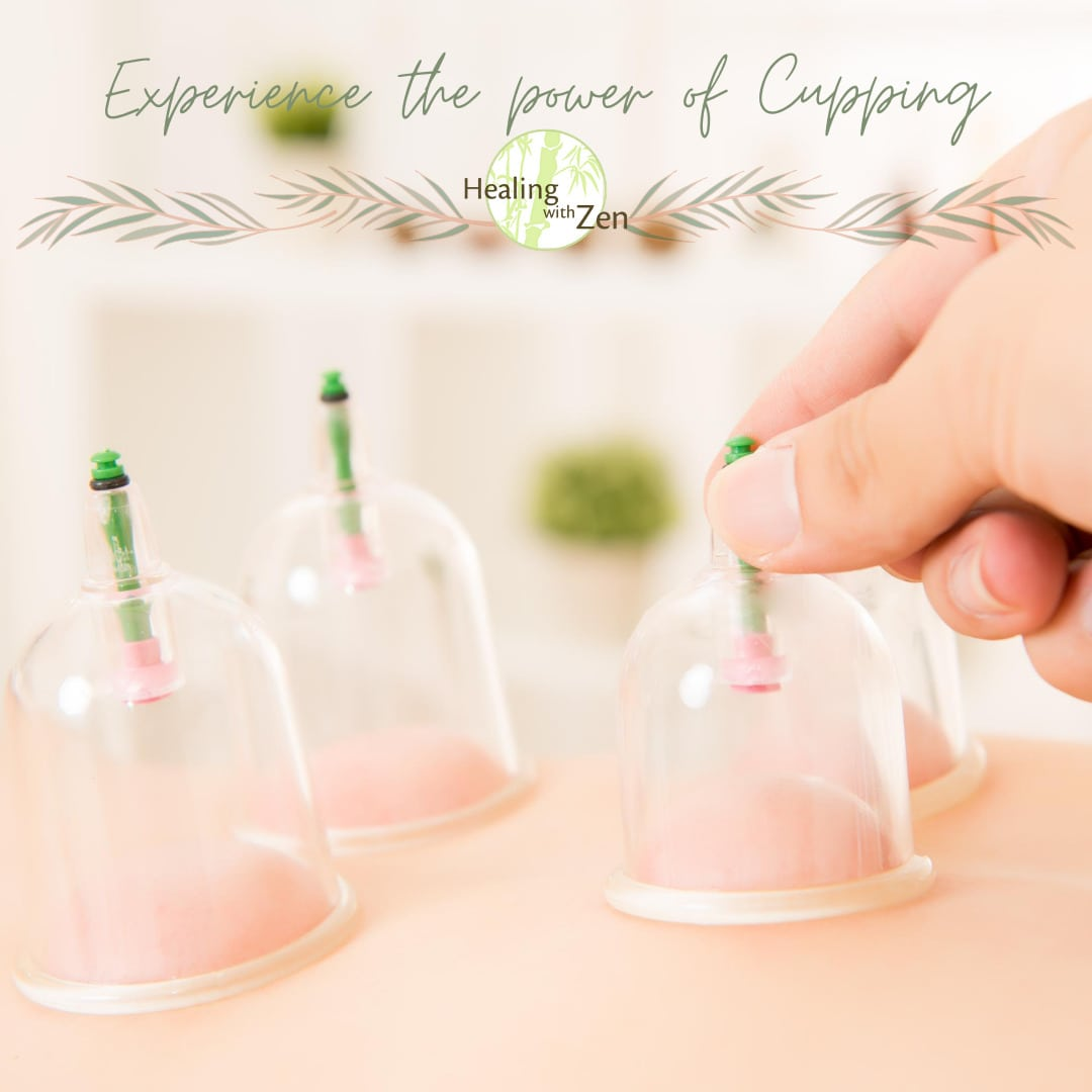 Healing with Zen, Acupuncture, Cupping, Herbal Remedies
